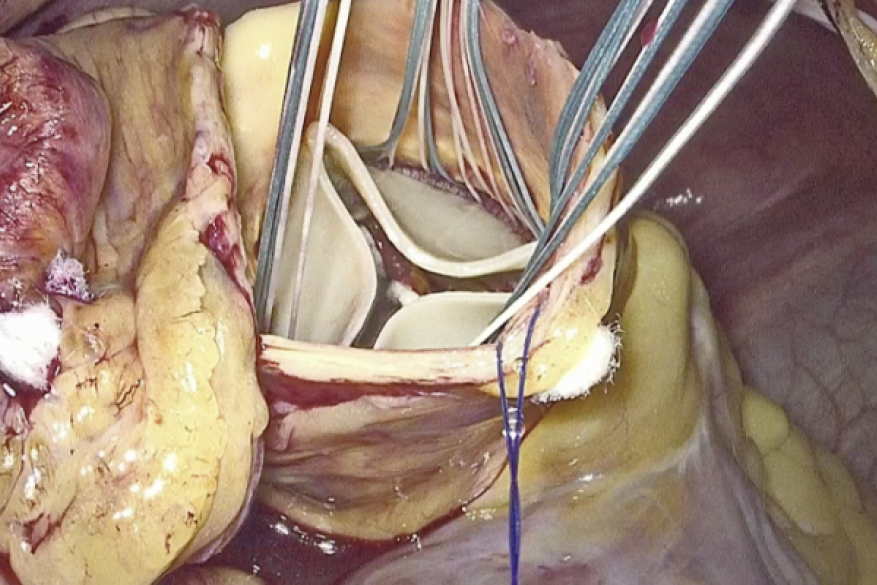 Totally Endoscopic Aortic Valve Replacement