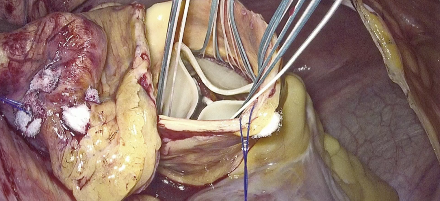 Endoscopic aortic valve surgery