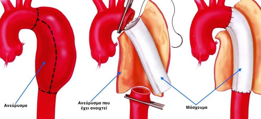 Surgery of the aorta