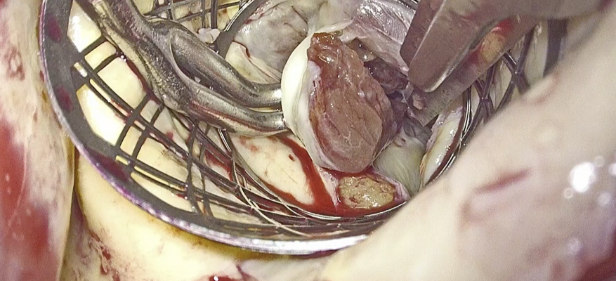 Endoscopic myectomy for hypertrophic obstructive cardiomyopathy