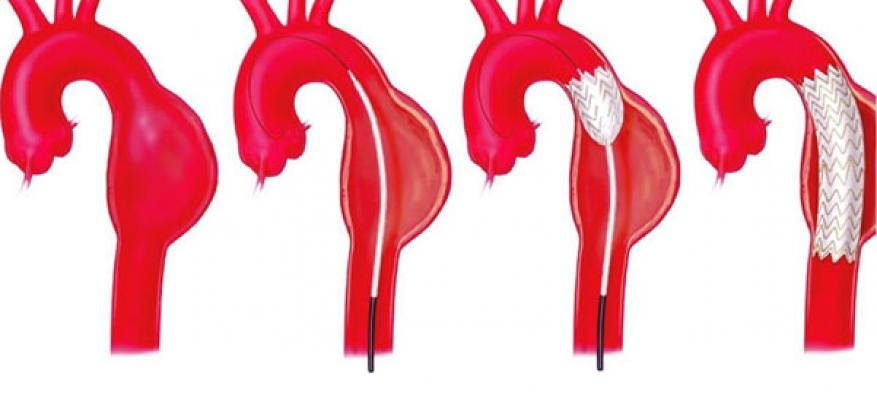 Endovascular aortic aneurism repair (TEVAR)