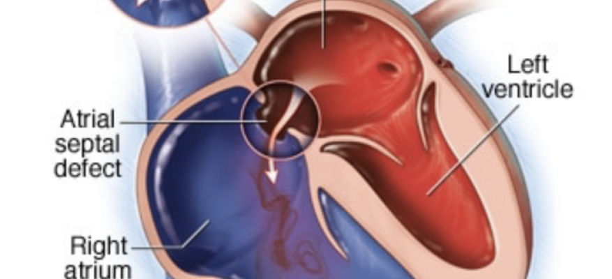 Endoscopic closure of atrial septal defects